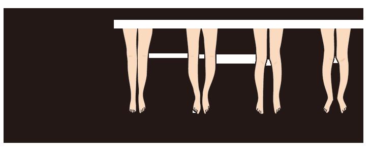 脚・X脚は、つま先とかかとをそろえて立った時に、太もも、ふくらはぎ、うちくるりぶしの4ヶ所が正しく着かなくなった状態にあることです。